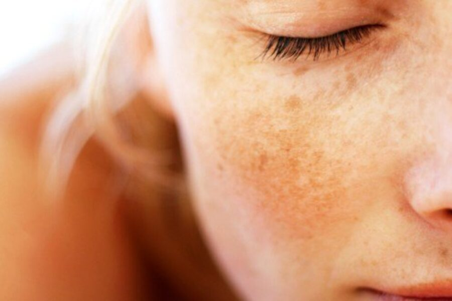 What treatments are effective for hyper-pigmentation?